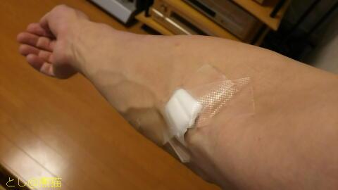 腎細胞がん 追跡検査 造影剤 CT 検査