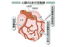 心臓の3本の冠動脈