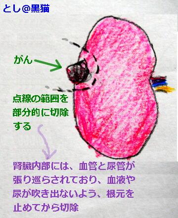 腎細胞がん 腎部分切除手術の日でした